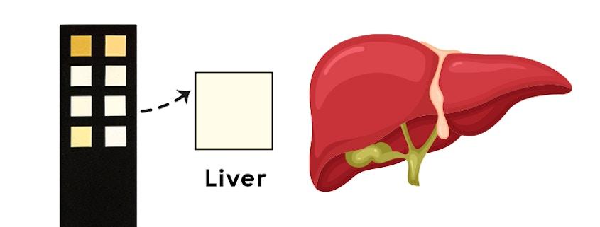 liver box